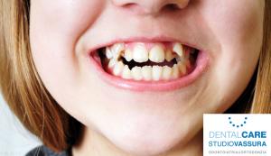 ortodonzia denti storti