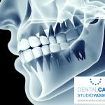 ortodonzia diagnosi