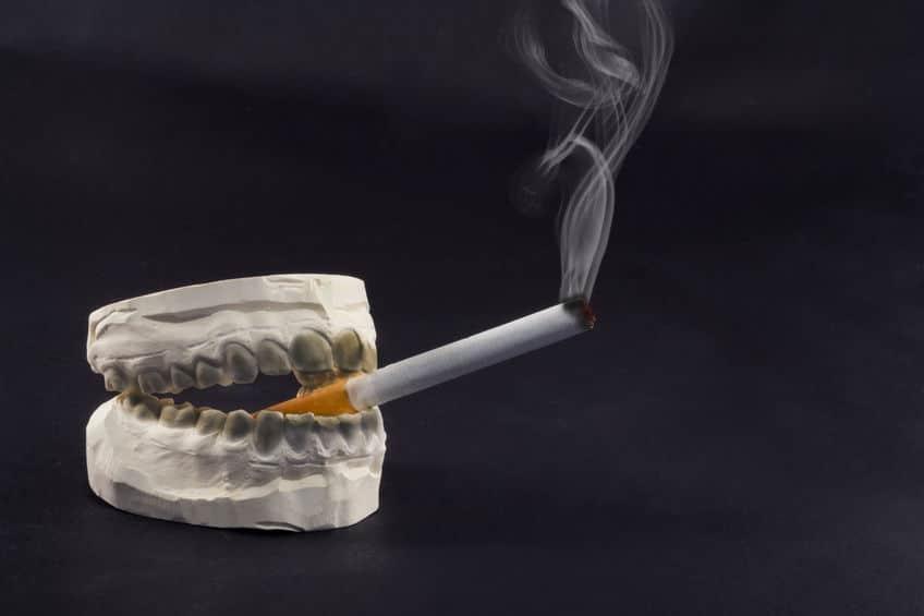 fumo e denti