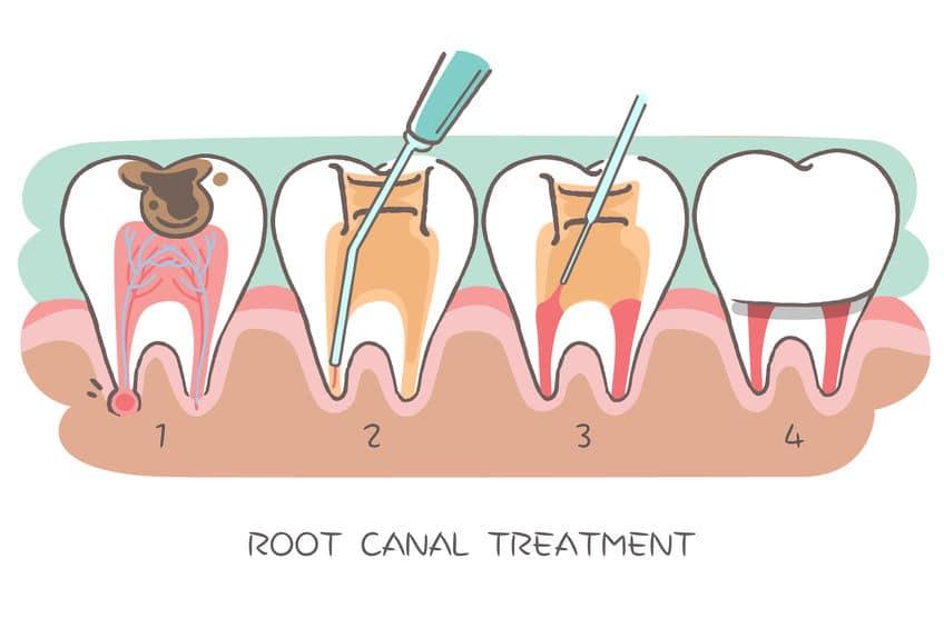 chirurgia endodontica