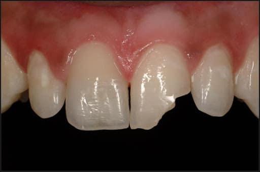 frattura dente da piercing