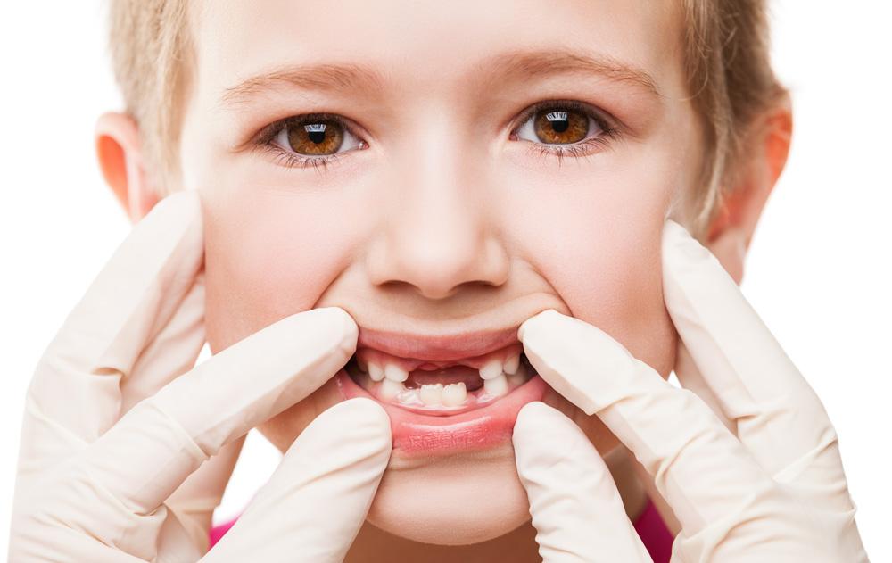 perchè curare denti da latte